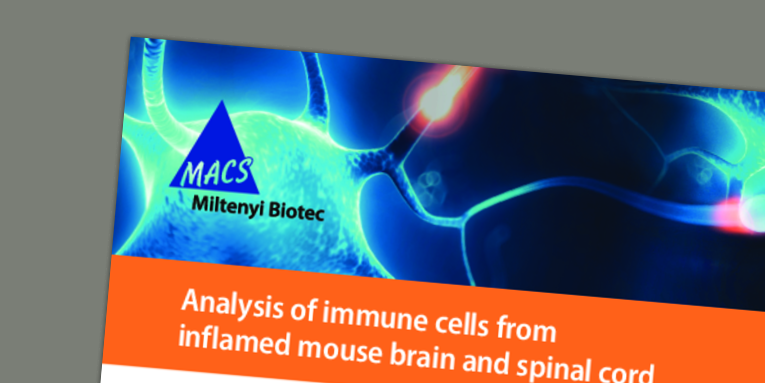 Analysis of immune cells from inflamed mouse brain and spinal cord