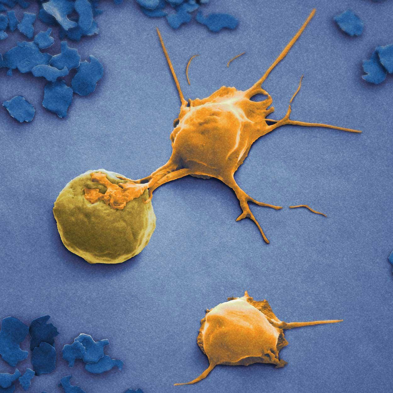 NK cells