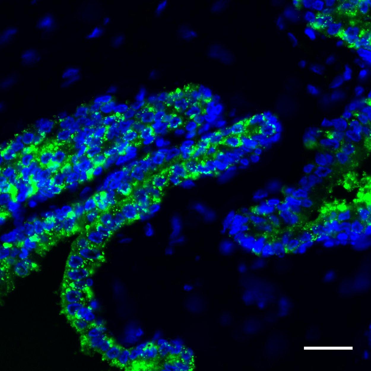 ACPP Antibody, anti-human, REAdye_lease™